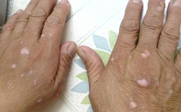 手部白癜风的治疗方法是怎样的