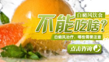 中年白癜风饮食原则是什么