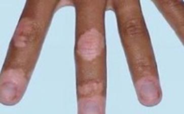 节段型白癜风会给患者带来什么伤害