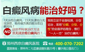 郑州西京白癜风.jpg