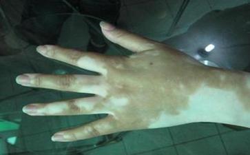 手指按压变红的白斑就是白癜风吗